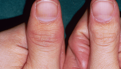 Pair of thumbs showing psorasis affected area