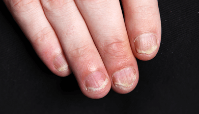 Close-up image of psoriasis on nails
