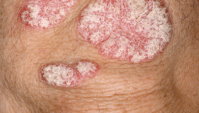 Close-up of plaque psoriasis on body